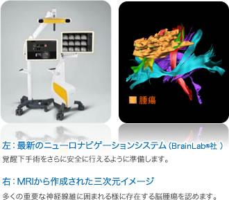 左:最新のニューロナビゲーションシステム(BrainLab®社 )/右:MRIから作成された三次元イメージ