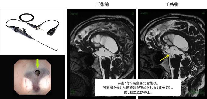 手術:第3脳室底開窓術後。開窓部を介した髄液流が認められる(黄矢印)。第3脳室底は拳上。